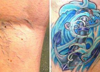 Visszér tetoválás